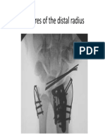 wrist fractures.pdf