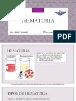 Hematuria en pediatría