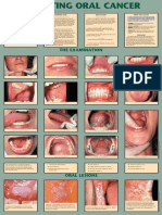 Detecting Oral Cancer