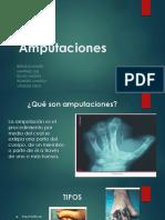 Amputaciones (1)