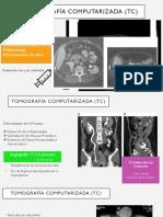 Tomografía computarizada-Urología