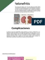 Pielonefritis.pptx