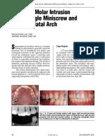 Jco_2012!01!48 Maxillary Molar Intrusion Single Miniscrew Transpalatal Arch