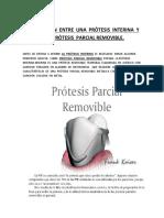 Protesis interina