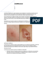 Infecciones Por Estafilococos