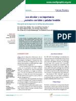 Injerto óseo alveolar y su importancia en los pacientes con labio y paladar hendido