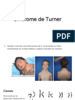 Sindrome de Turner