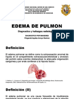 EDEMA DE PULMON