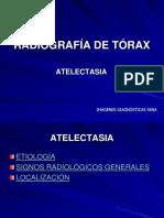 Radiografia Torax Signos