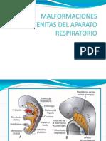 Malformacionescongenitasdelaparatorespiratorio HOY 2016