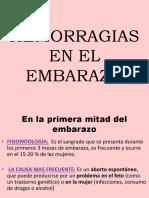Hemorragias en El Embarazo