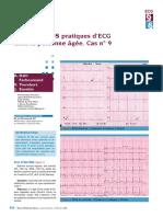 Problèmes Pratiques D'ECG Chez La Personne Agée. Cas N° 09
