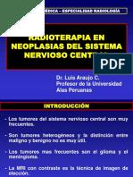Radioterapia en Neoplasias Del Snc (1)