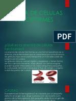 Anemia de Celulas Falciformes 2