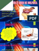 Epitrocleitis ò Codo de Golfista