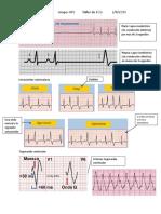 Tarea electrocardiograma.docx