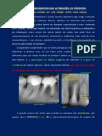 UNESP - Rx alt-periapice.pdf