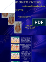 periodontopatias
