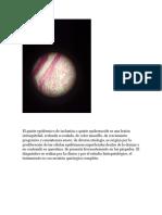 Microscopio Neoplasia