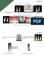 Anatomia Interna 2_Dentes