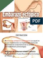 185270966-EMBARAZO-ECTOPICO.pptx