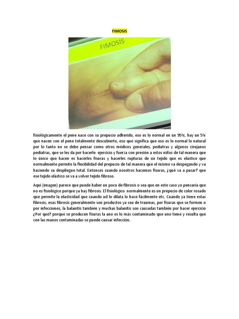 causa agenesia dedos manómetro
