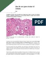 Nanopartículas de oro para tratar el cáncer de próstata.docx