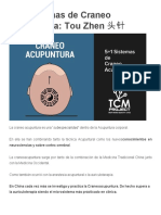 5+1 Sistemas de Craneo Acupuntura_ Tou Zhen 头针 _ Proyecto MTC
