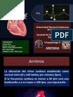 ARRITMIAS - 03-02-17