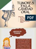 Tumores en La Cavidad Oral Original