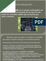 Dacriocistografía