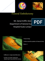 Femoral Embolectomy