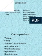 Epifisiolise-ppt.ppt