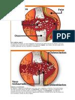 Osso Osteoclasto e Osteoblasto