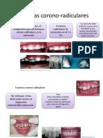 Fracturas-corono-radiculares-DANNY.pptx