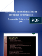 Occlusal Consideration in Implant Prosthesis