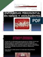 Enfermedad Periodontal en Niños y Adolescentes