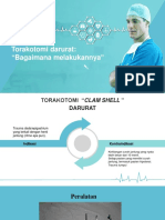 torakotomi darurat