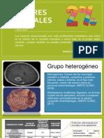 Tumores cerebrales-NEOPLASIAS