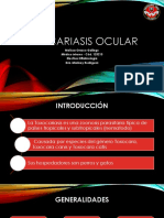 Toxocariasis Ocular