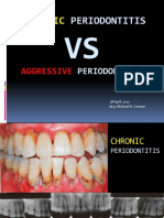 Chronic vs Aggressive Periodontitis