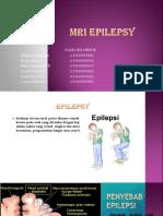 Ppt MRI epilepsi