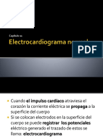 Electrocardiogramanormal