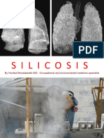 silicossis
