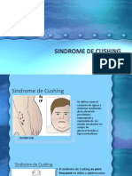 Sindrome de Cushing
