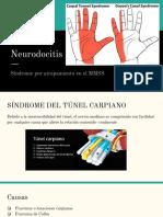 Neurodocitis