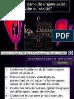 Volvulus Du Sigmoïde