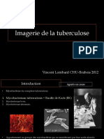 Tuberculose CI 2012FILEminimizer