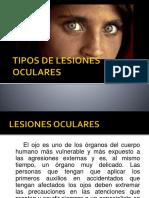 Tipos de Lesiones Oculares