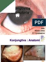 199536984-Konjungtivitis-Fliktenularis.ppt